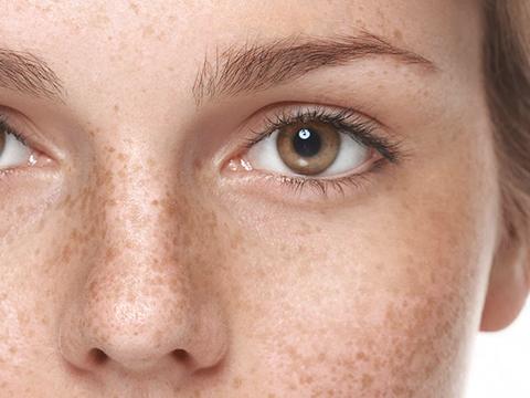 kulit hiperpigmentasi